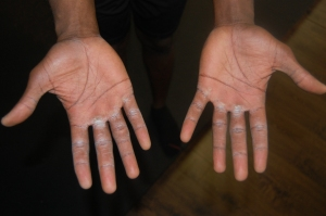 My hands after my workout
